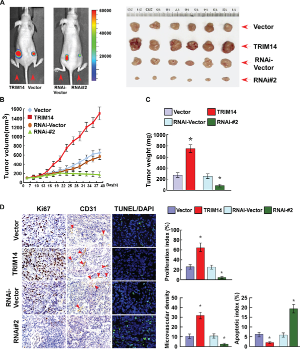 Overexpression of TRIM14 contributes to TSCC progression in vivo.