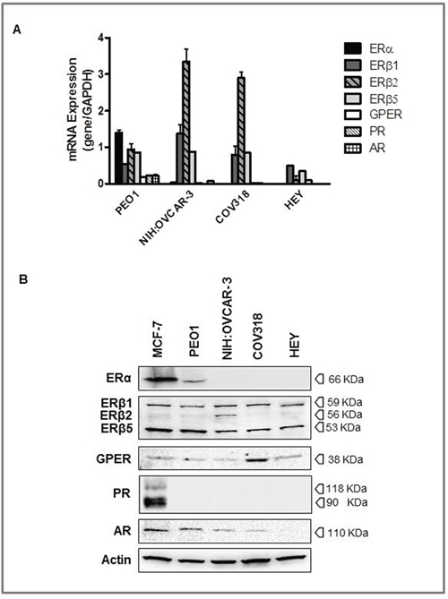 Expression of steroid hormone receptors in high grade serous ovarian cancers (HGSOC) cell lines.