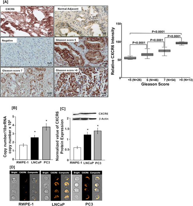 CXCR6 expression in prostate cancer tissue and cell lines.