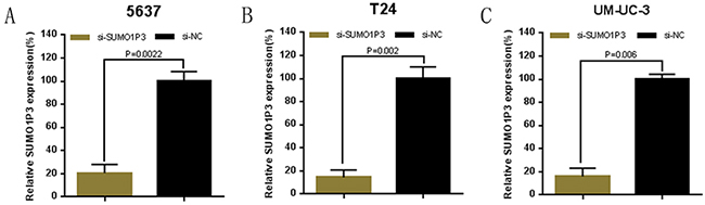 Expression changes of SUMO1P3 after transfection of SUMO1P3 specific siRNA or negative control siRNA.
