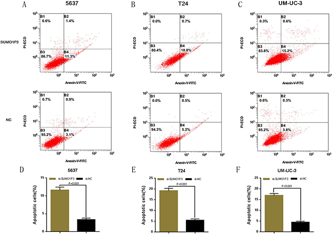 Silencing long noncoding RNA SUMO1P3 induced cell apoptosis in bladder cancer cells.