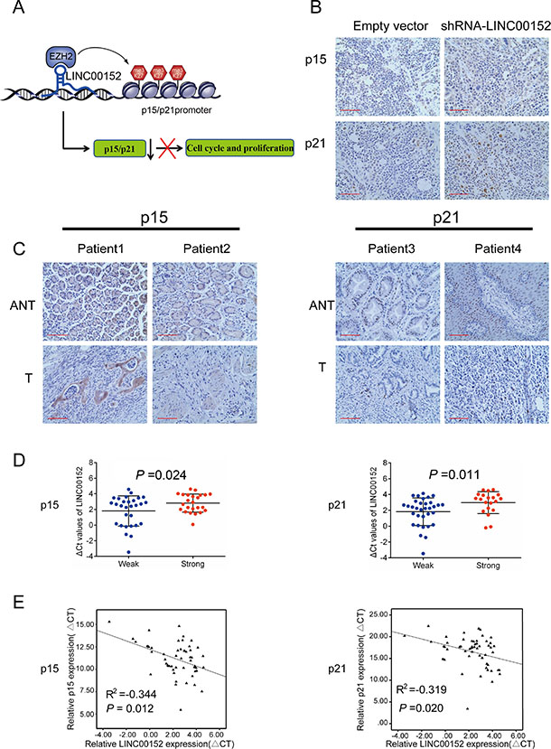LINC00152 expression is inversely correlated with p15 and p21 levels in xenograft tumors and GC tissues.