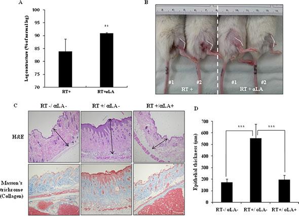 α-LA inhibits radiation-induced fibrosis in mice model.