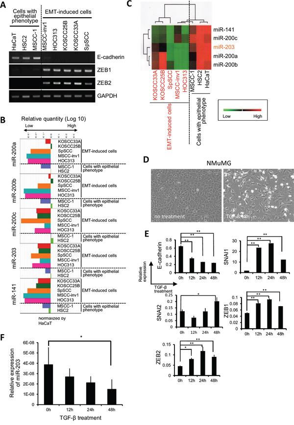 miR-200 family and miR-203 expression are correlated with EMT-induced phenotype in HNSCC.
