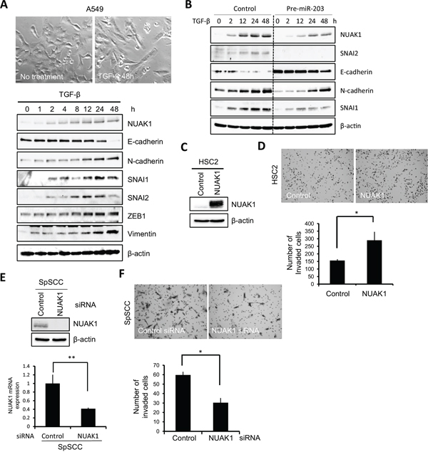 Role of NUAK1 in invasion and EMT induction.