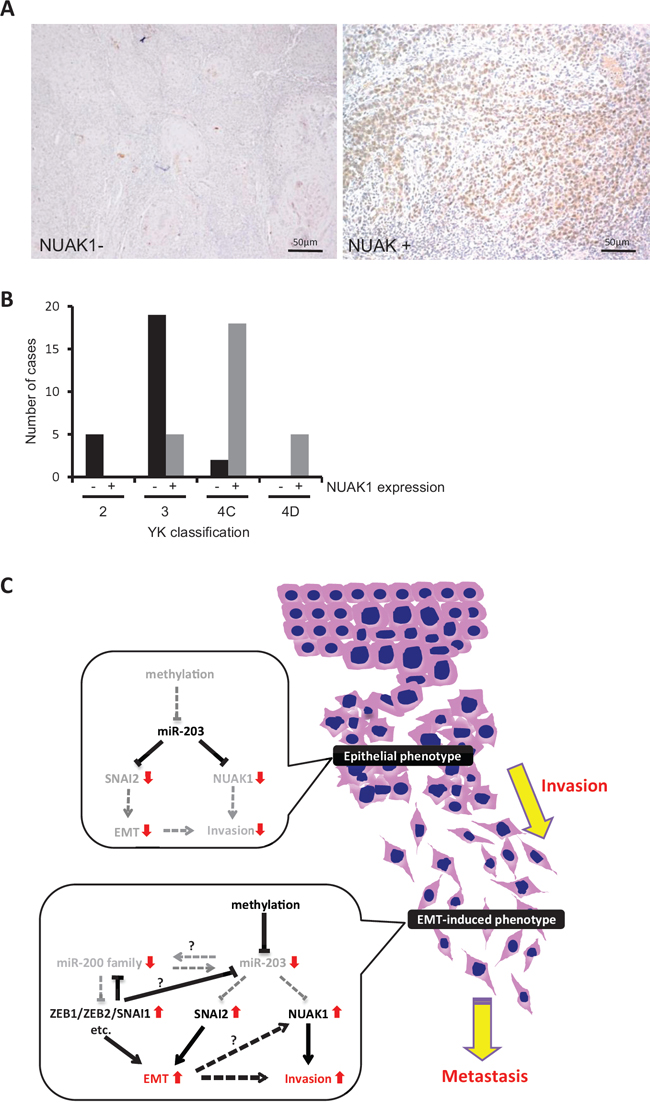 NUAK1 expression and its correlation with invasion pattern in HNSCC cases.