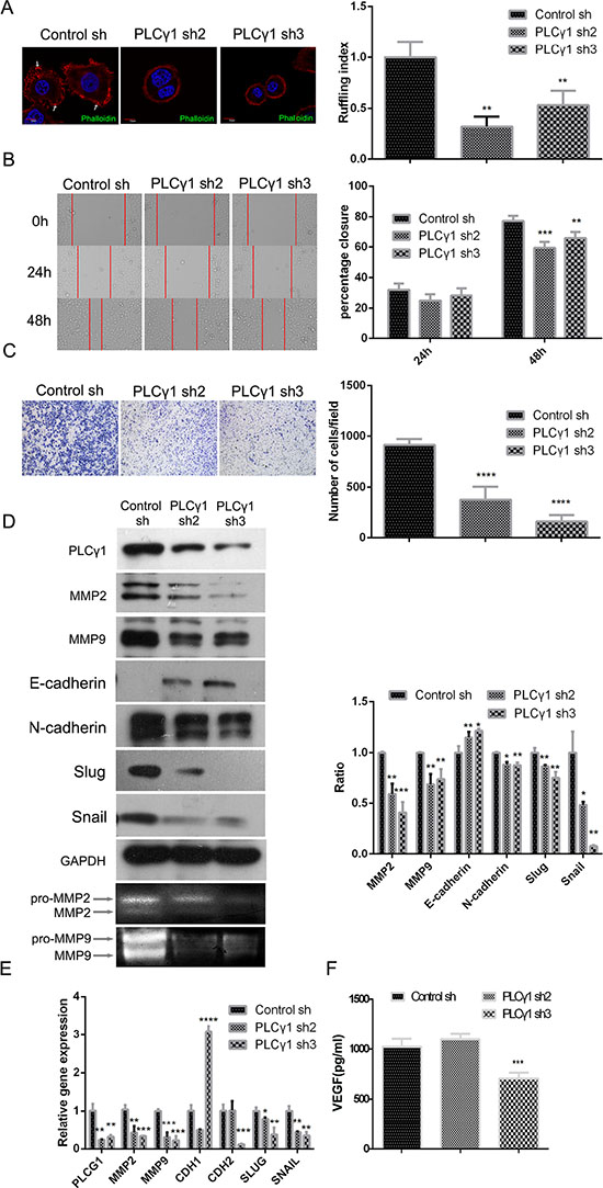 Lentivirus-mediated PLCγ1 shRNA could suppress migration in human gastric adenocarcinoma BGC-823 cells.
