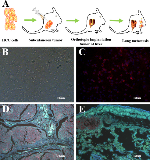 QD605- aptamer LY-1 labels local HCC cells in liver and metastatic HCC cells in lung tissues.