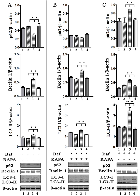 Evaluation of p62, Beclin 1 amount and LC3 turnover in infected HeLa cells by western blotting analysis.