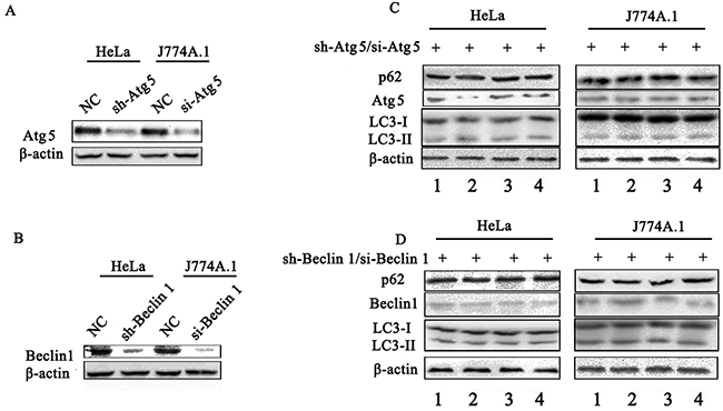 Assay of S. Typhimurium infected cells that deficient in essential autophagy components by siRNA.