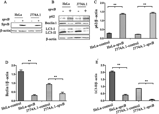 spvB overexpression inhibited autophagy activity of host cell.