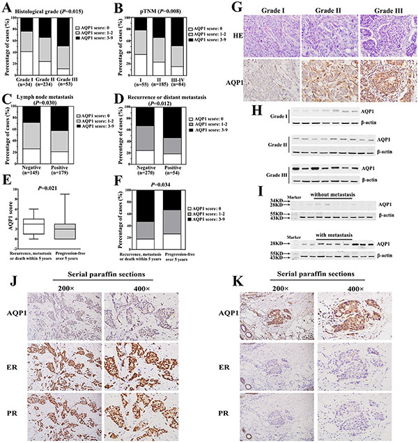 Cytoplasmic expression of AQP1 was positively correlated with breast cancer progression and negatively correlated with ER and PR status.
