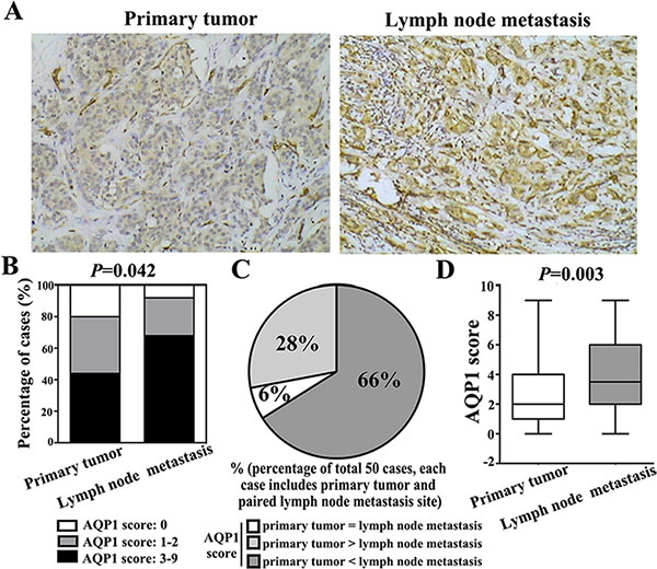 Cytoplasmic expression of AQP1 in lymph node metastases was higher than their paired primary tumors in total 50 paired cases.