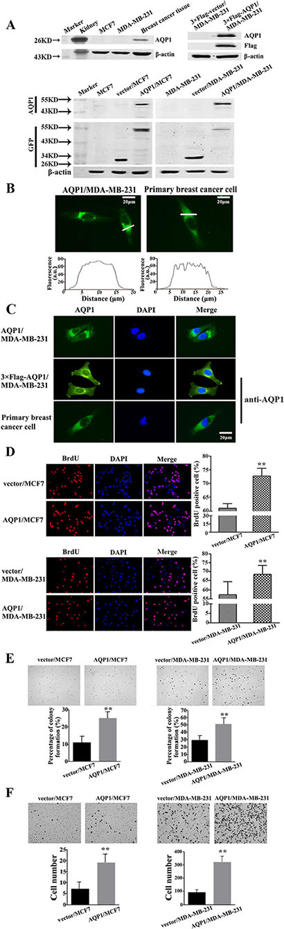 Overexpression of AQP1 promoted proliferation and invasion of breast cancer cells.