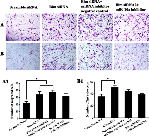 Cell migration and invasion in VCT cells transfected by Bim siRNA with or without miR-10a inhibitor.
