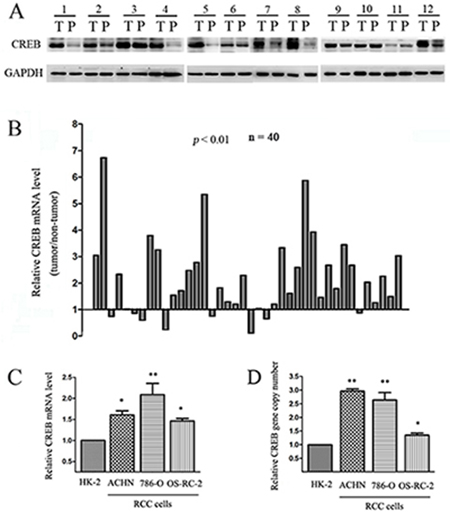 CREB expression is frequently up-regulated in RCC.