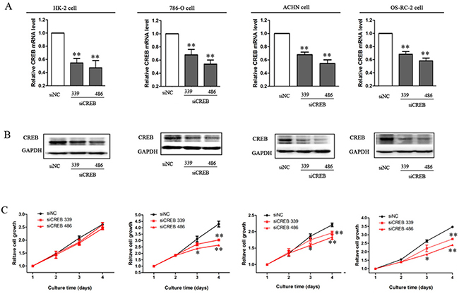 Decreased expression of CREB suppresses RCC cell growth.