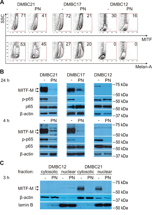 PN reduces percentages of MITF-positive cells and diminishes levels of MITF-M protein and phosphorylated p65/NF-κB.