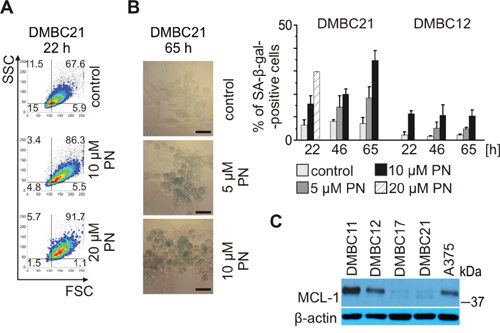 PN induces senescence in melanoma cells expressing MITF-M at high level.