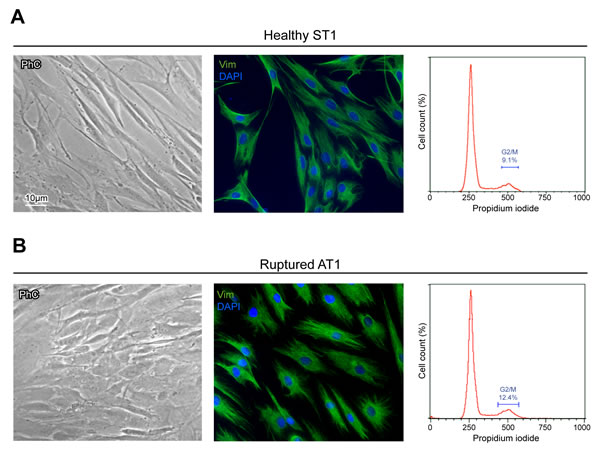 Culture cell characterization shows no significant differences in ST and AT cells.