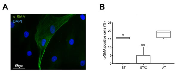 Expression of the differentiation marker alpha-smooth muscle actin (α-SMA) in healthy ST- and ruptured AT-derived cells.