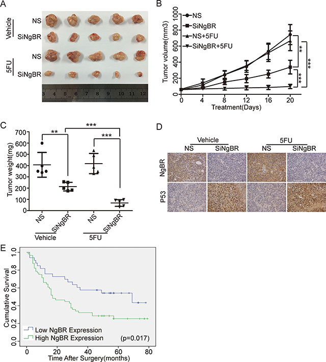 NgBR deficiency reverses the chemoresistance of human hepatocellular drug-resistant tumor to 5-FU through regulating p53 expression in vivo.