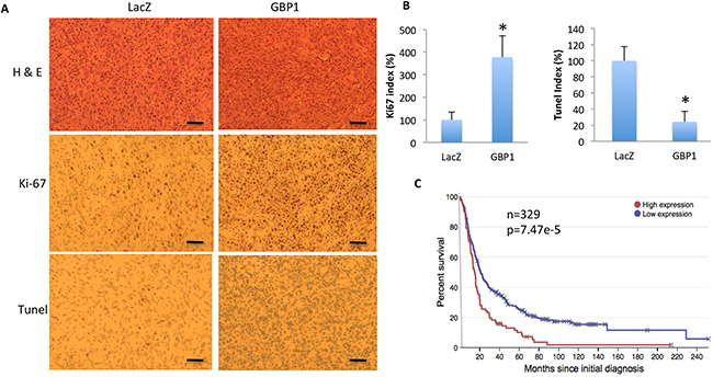 GBP1 overexpression increases cell proliferation and reduces cell apoptosis in mice.