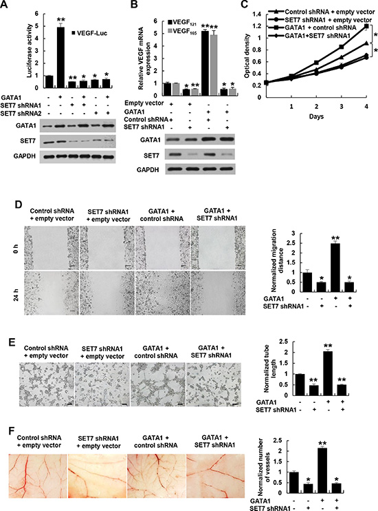 GATA1 modulates VEGF expression and VEGF-induced HUVEC proliferation, migration and tube formation as well as angiogenesis through SET7.