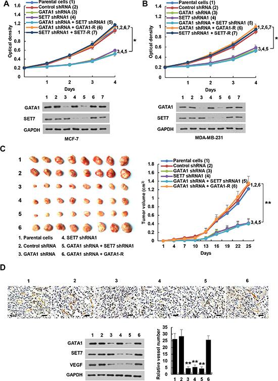 GATA1 regulates breast cancer cell proliferation through SET7.