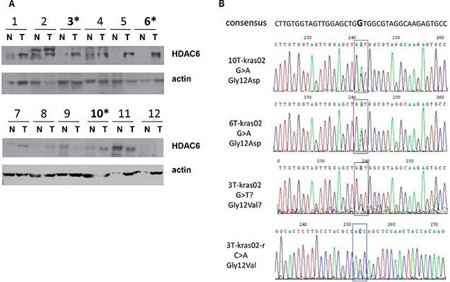 Association of K-ras mutation and high expression of HDAC6 in colon cancer patients.