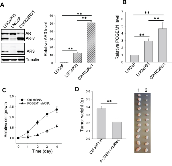Effect of PCGEM1 on castration resistance.