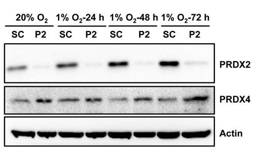 PRDX2 knockdown increases PRDX4 protein levels in HeLa cells.
