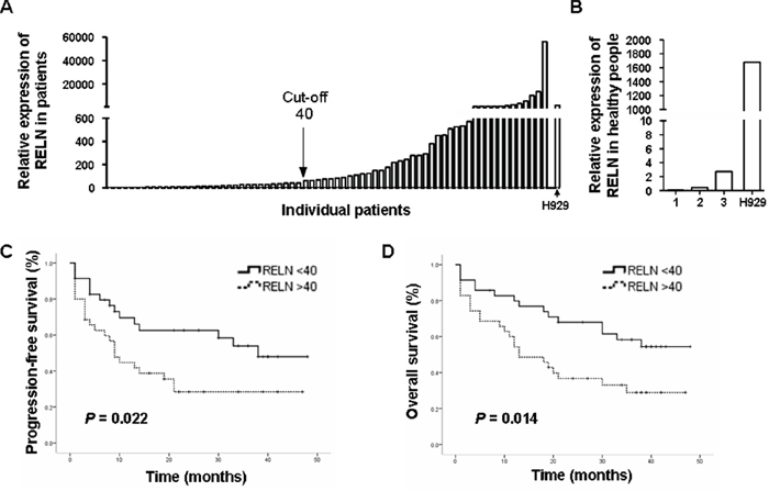 RELN expression is negatively associated with PFS and OS in MM patients.