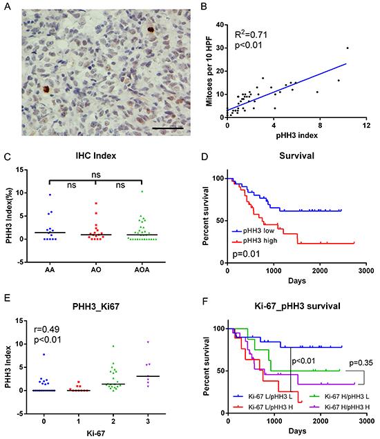 IHC data in anaplastic diffuse gliomas.