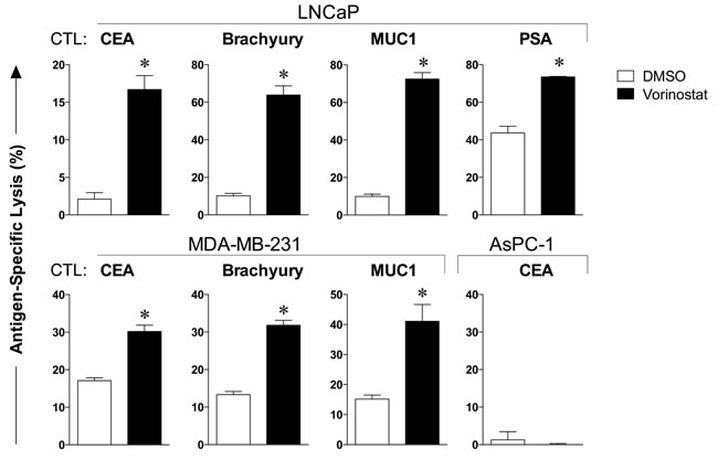 Carcinoma cells exposed to vorinostat are significantly more sensitive to CTL-mediated killing.