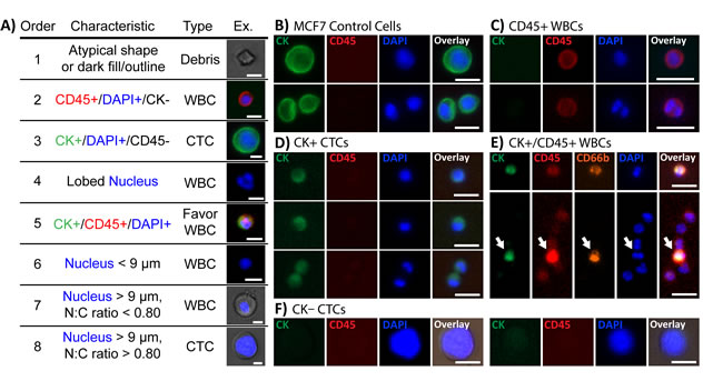 Immunofluorescent staining characteristics for identifying CTCs.