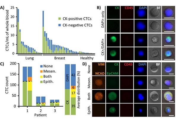 Immunofluorescent profiles of patient CTCs.