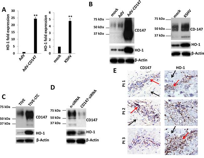 KSHV infection upregulates HO-1 expression through CD147
