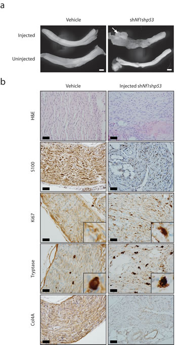 MPNST development in mice with embryonic Schwann cell precursor