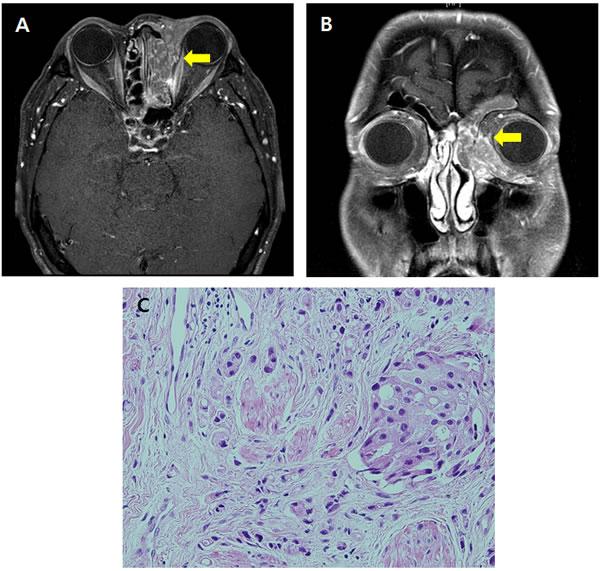 The primary tumor located in the lacrimal gland seen in orbit MRI