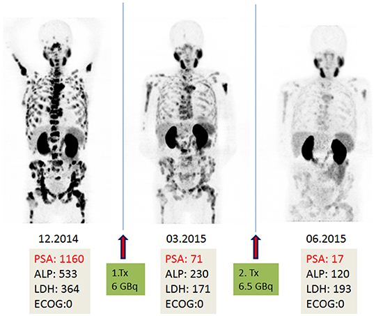 A 75-year-old patient with diffuse bone and lymph node metastases as well as local recurrence