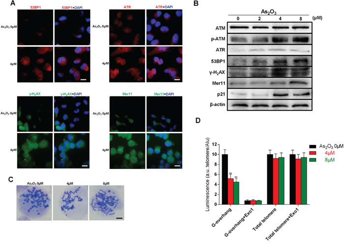 As2O3-induced DNA damage and chromosome instability is associated with degradation of telomeric G-overhang.