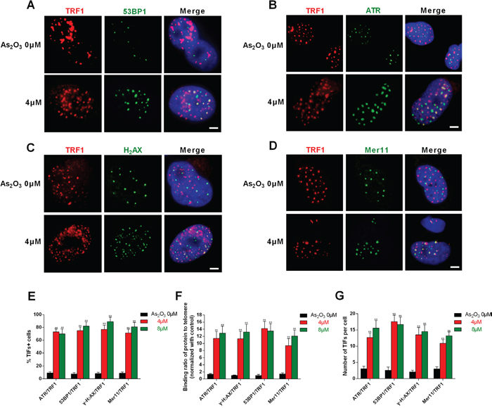 DNA-damage response triggered by As2O3 occurred at telomeres.