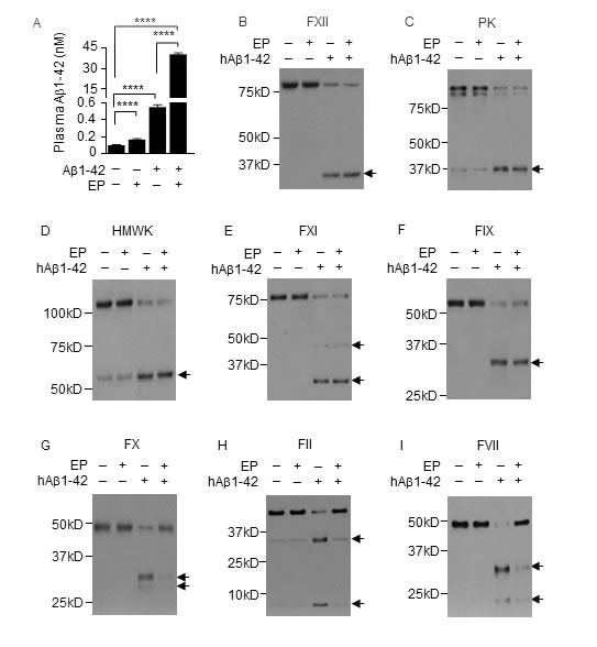 EP inhibits plasma Aβ1-42 degradation and prevents Aβ1-42 from activating FX, FII and FVII.