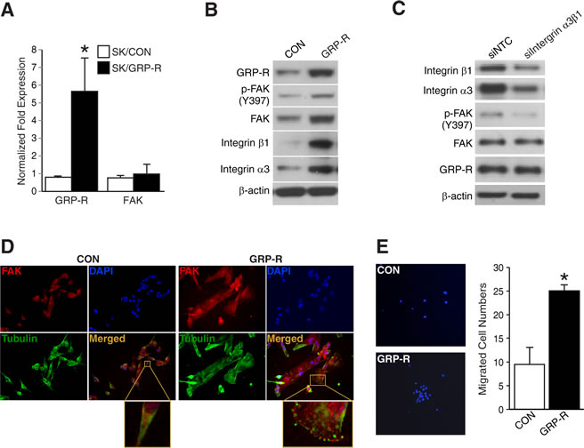 GRP-R overexpression increased FAK and cell migration in SK-N-SH cells.