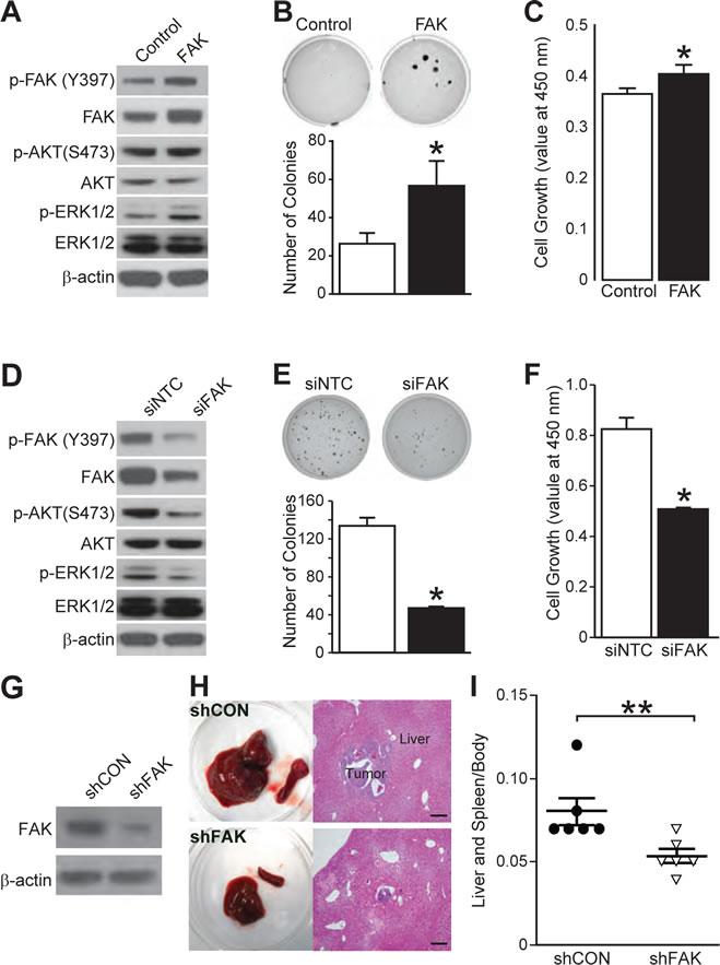 FAK regulates neuroblastoma cell growth