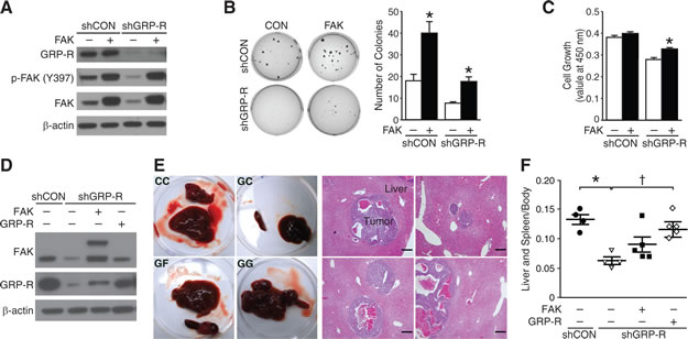 FAK overexpression in GRP-R silencing restores neuroblastoma growth.