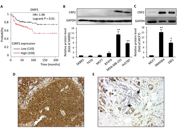 CRP2 up-regulation is associated with a significantly higher risk of metastasis in basal-like breast cancer patients, and correlates with the mesenchymal phenotype in human breast cancer cell lines.
