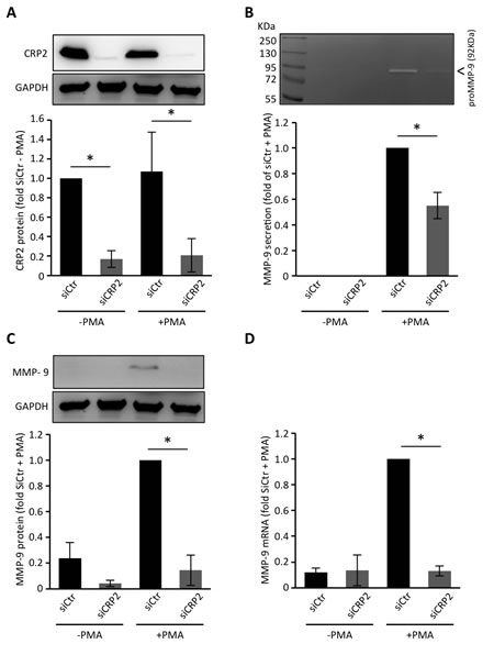 CRP2 regulates MMP-9 expression in MDA-MB-231-luc cells.