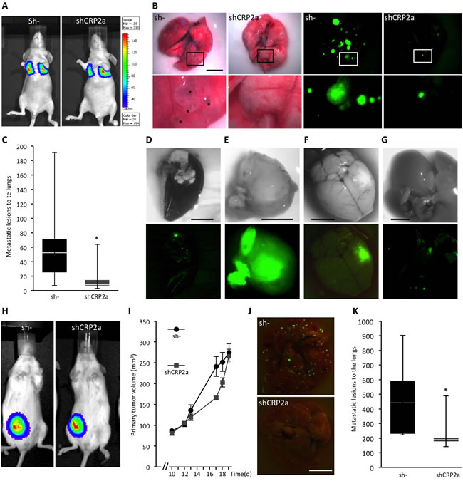 CRP2 promotes breast cancer metastasis.